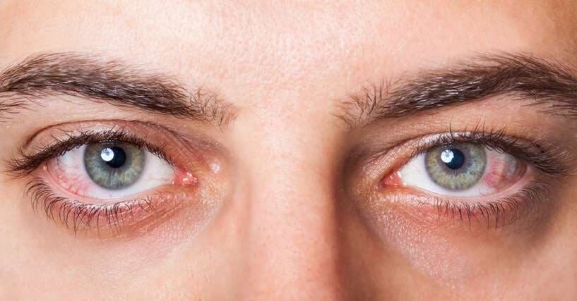 can mold affect your eyes